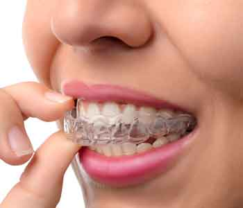 David Son, DDS Invisalign Dentist Irvine CA –  Why is Invisalign a good option?