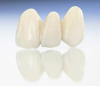 David Son, DDS Dentist in Irvine, CA offers restorations including custom crowns and bridges
