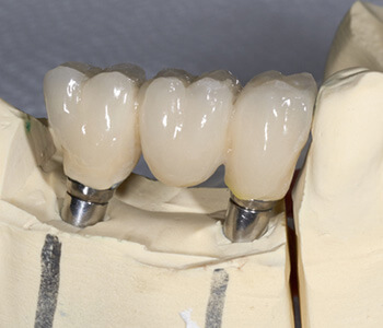 """David Son, DDS Patients in Irvine ask, """"What are the advantages of biocompatible ceramic dental implants?"""""""