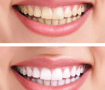 Whitening tips for successful treatment in Irvine area
