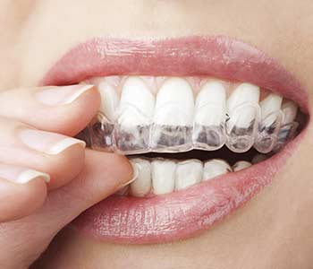 David Son, DDS Straightening your teeth using Invisalign orthodontics with Irvine, CA dentist