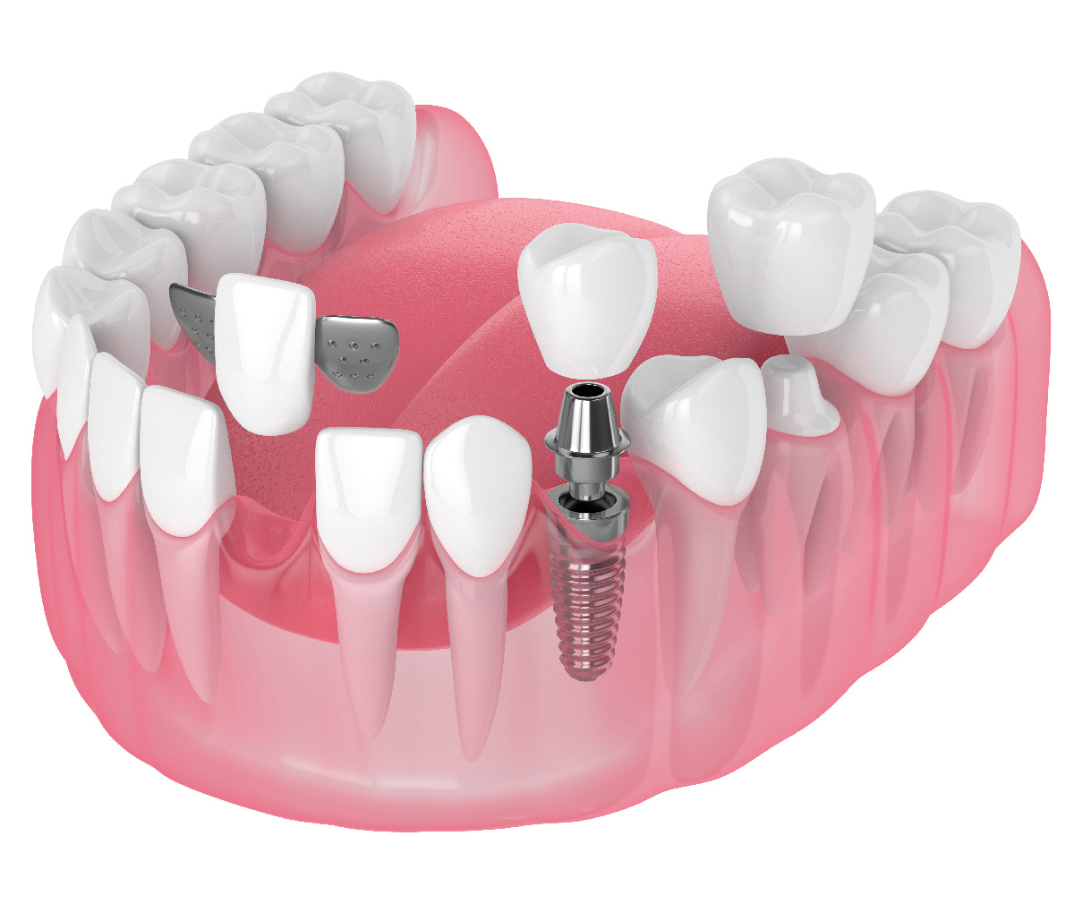 David Son, DDS Dentist in Irvine, CA providing answers to commonly asked questions regarding porcelain dental bridges