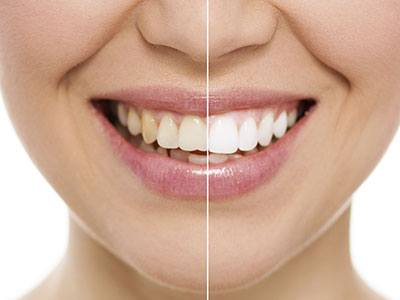 Cosmetic Dentistry Irvine CA
