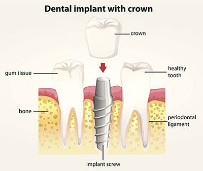 Dental Implants Irvine CA